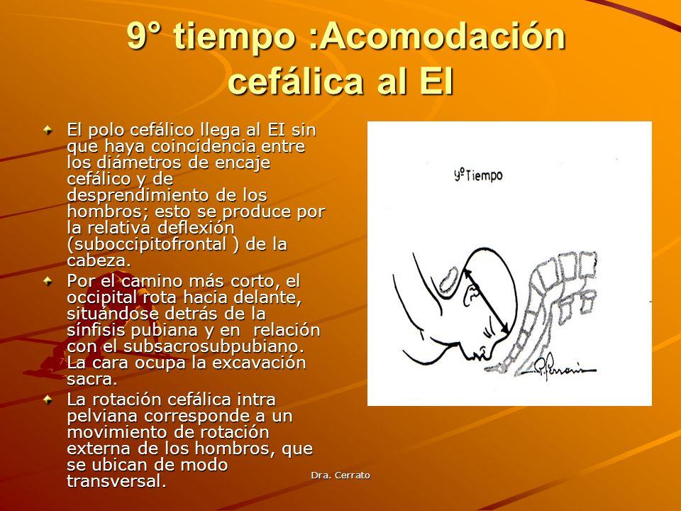 Dra. Cerrato 9° tiempo :Acomodación cefálica al EI 9° tiempo :Acomodación cefálica al EI El polo cefálico llega al EI sin que haya coincidencia entre