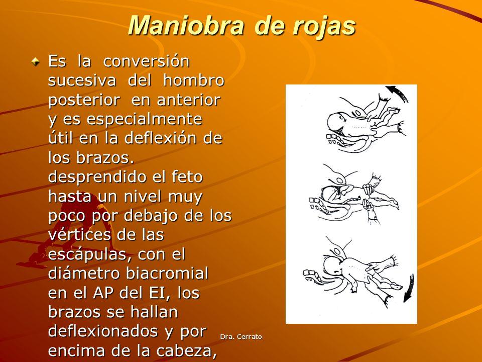 Dra. Cerrato Maniobra de rojas Es la conversión sucesiva del hombro posterior en anterior y es especialmente útil en la deflexión de los brazos. despr