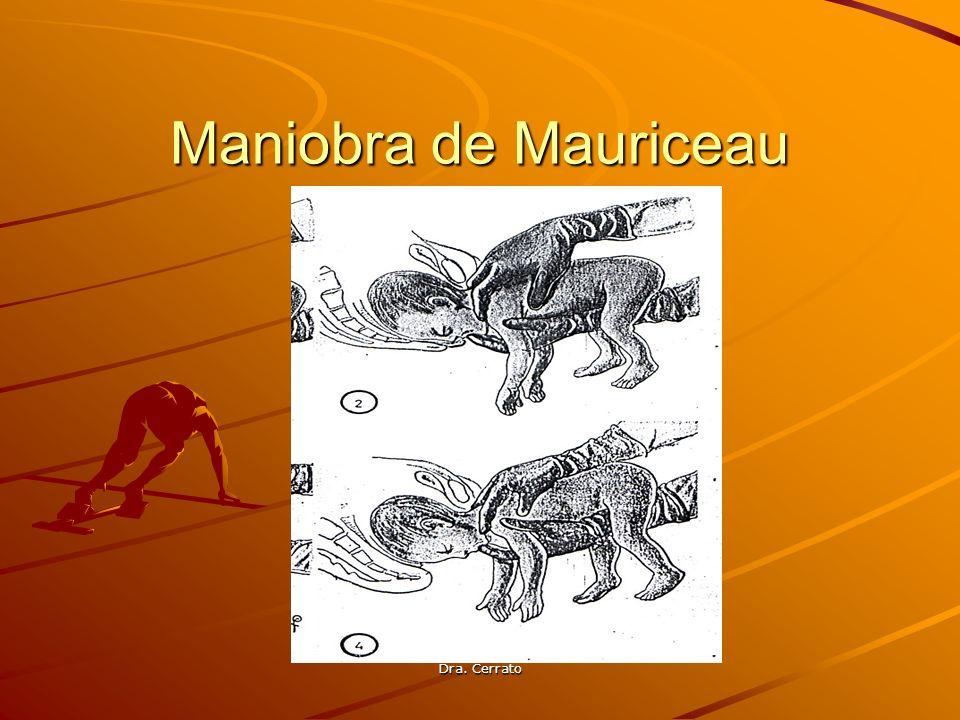 Dra. Cerrato Maniobra de Mauriceau