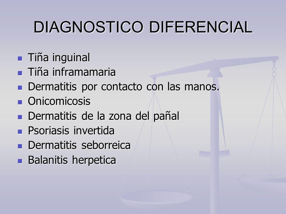 DIAGNOSTICO DIFERENCIAL Tiña inguinal Tiña inguinal Tiña inframamaria Tiña inframamaria Dermatitis por contacto con las manos. Dermatitis por contacto