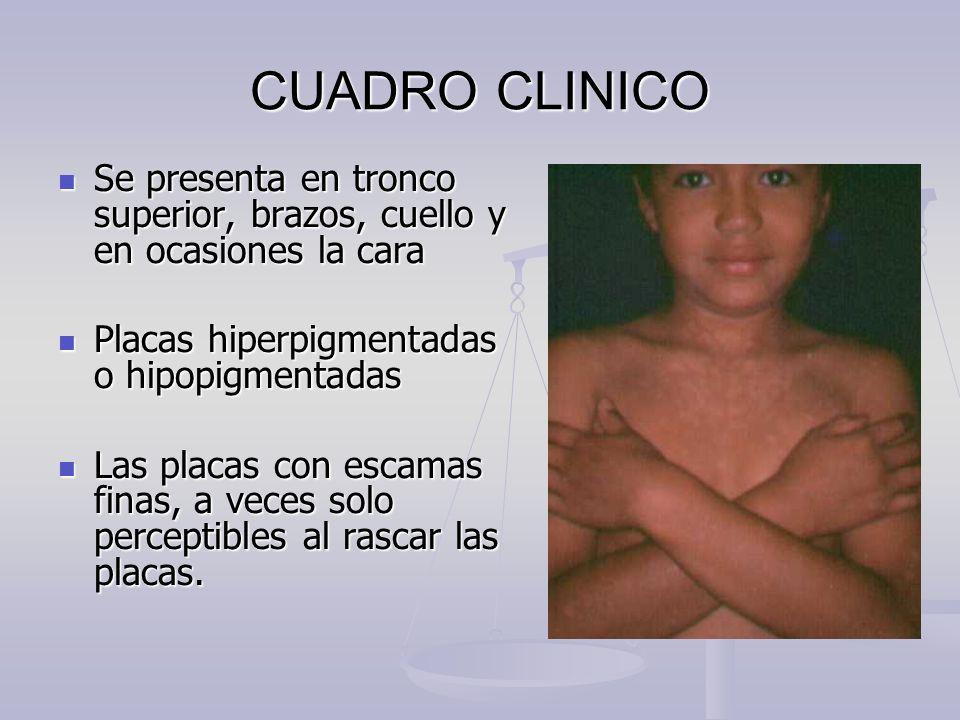 CUADRO CLINICO Se presenta en tronco superior, brazos, cuello y en ocasiones la cara Se presenta en tronco superior, brazos, cuello y en ocasiones la