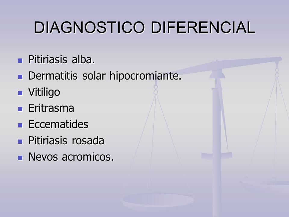 DIAGNOSTICO DIFERENCIAL Pitiriasis alba. Pitiriasis alba. Dermatitis solar hipocromiante. Dermatitis solar hipocromiante. Vitiligo Vitiligo Eritrasma
