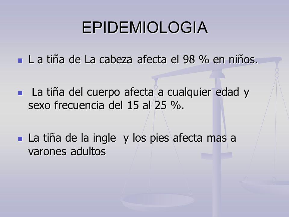 EPIDEMIOLOGIA L a tiña de La cabeza afecta el 98 % en niños. L a tiña de La cabeza afecta el 98 % en niños. La tiña del cuerpo afecta a cualquier edad
