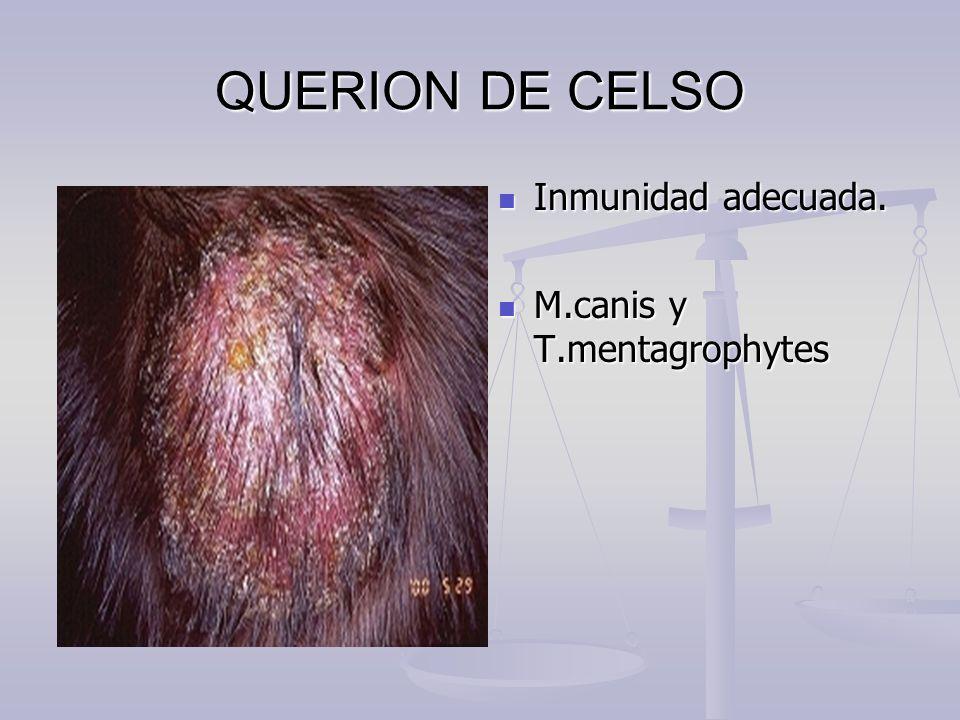 QUERION DE CELSO Inmunidad adecuada. M.canis y T.mentagrophytes