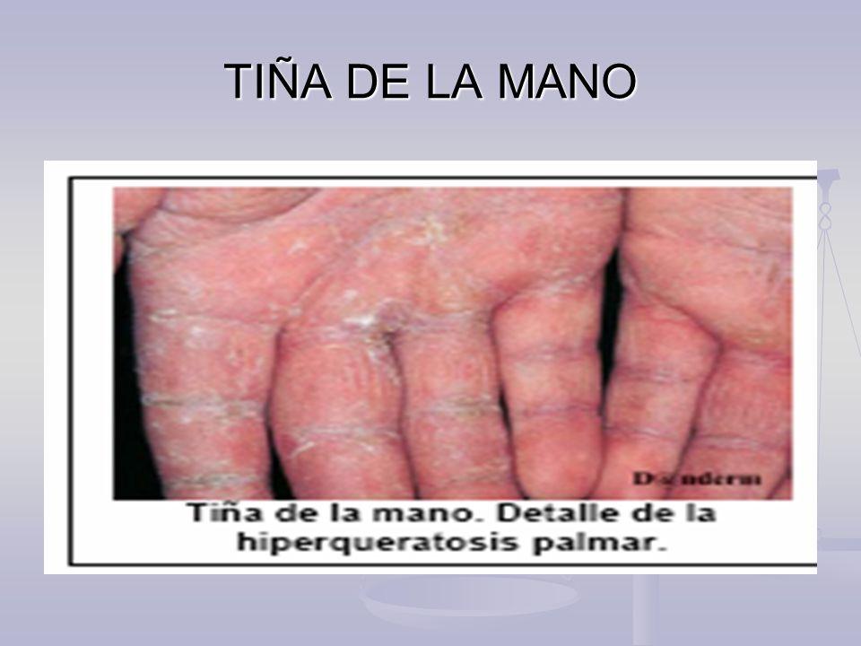 TIÑA DE LA MANO