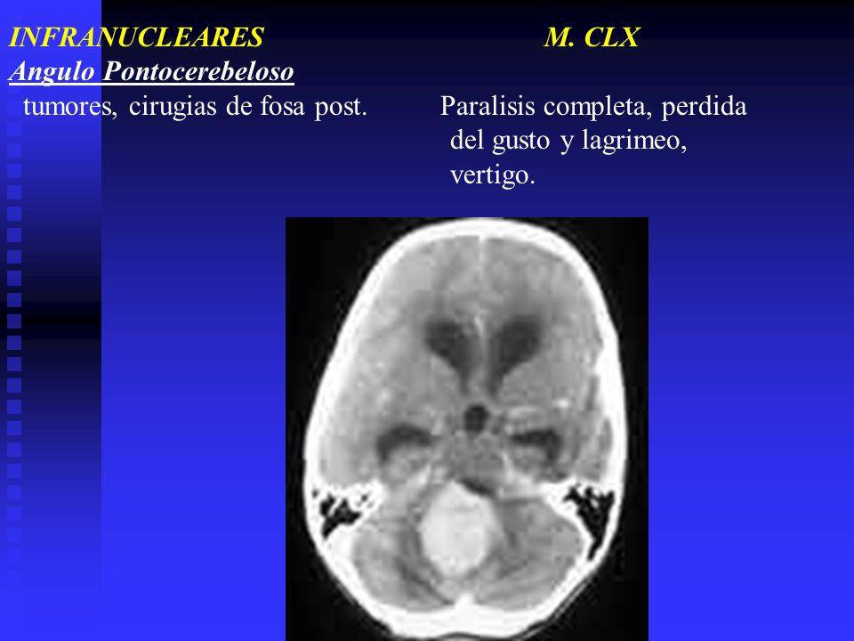 INFRANUCLEARES M. CLX Angulo Pontocerebeloso tumores, cirugias de fosa post. Paralisis completa, perdida del gusto y lagrimeo, vertigo.