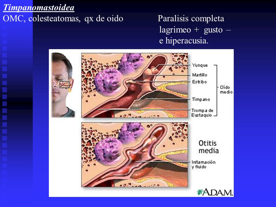 Timpanomastoidea OMC, colesteatomas, qx de oido Paralisis completa lagrimeo + gusto – e hiperacusia.