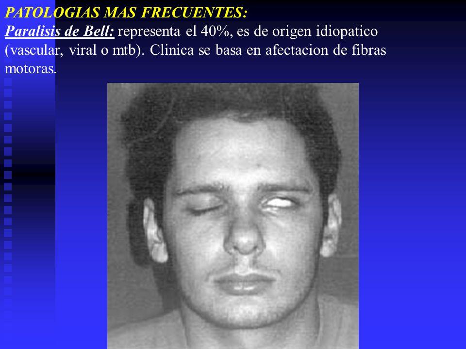 PATOLOGIAS MAS FRECUENTES: Paralisis de Bell: representa el 40%, es de origen idiopatico (vascular, viral o mtb). Clinica se basa en afectacion de fib