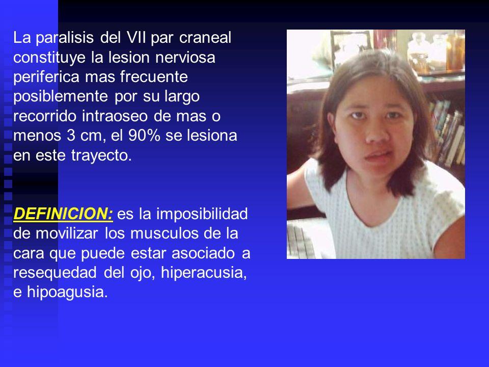 La paralisis del VII par craneal constituye la lesion nerviosa periferica mas frecuente posiblemente por su largo recorrido intraoseo de mas o menos 3