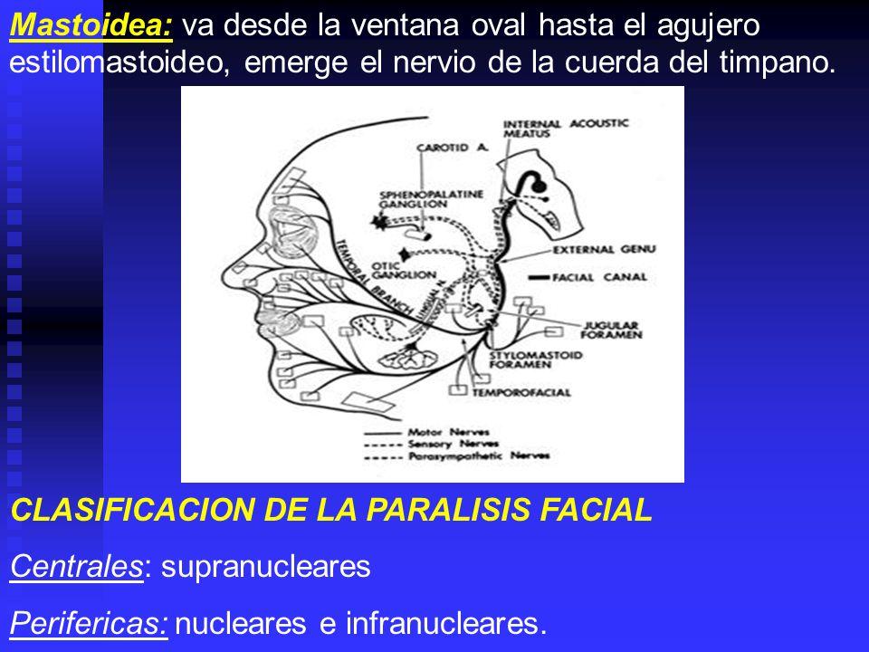 Mastoidea: va desde la ventana oval hasta el agujero estilomastoideo, emerge el nervio de la cuerda del timpano. CLASIFICACION DE LA PARALISIS FACIAL