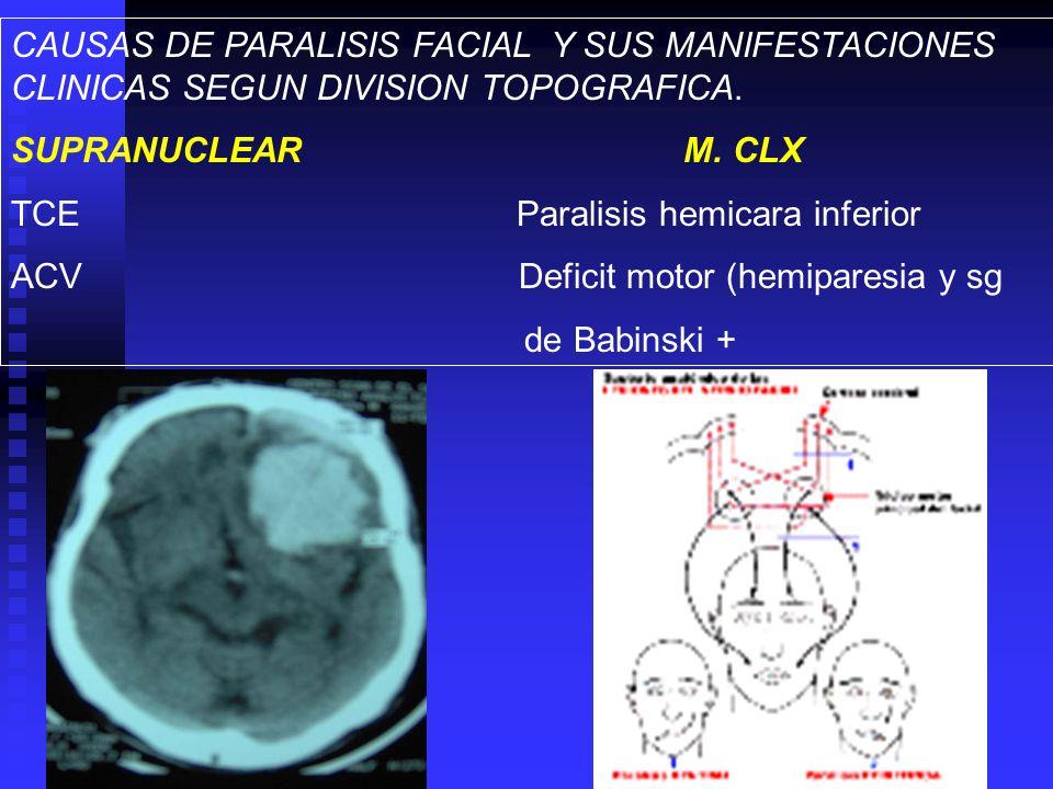 CAUSAS DE PARALISIS FACIAL Y SUS MANIFESTACIONES CLINICAS SEGUN DIVISION TOPOGRAFICA. SUPRANUCLEAR M. CLX TCE Paralisis hemicara inferior ACV Deficit
