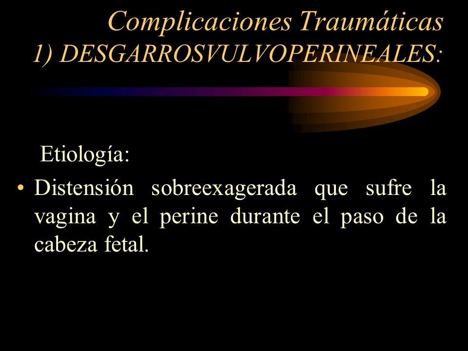 Complicaciones Traumáticas 1) DESGARROSVULVOPERINEALES: Etiología: Distensión sobreexagerada que sufre la vagina y el perine durante el paso de la cab