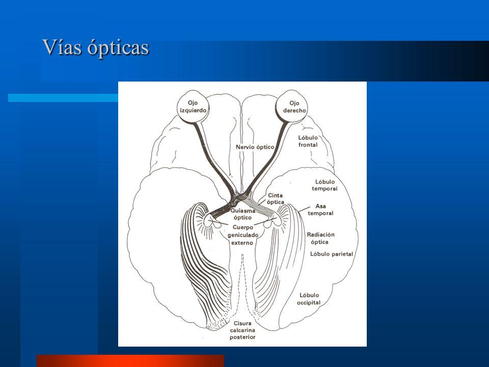 Nervio óptico Se compone de 4 porciones: Intra ocular 1 mm.