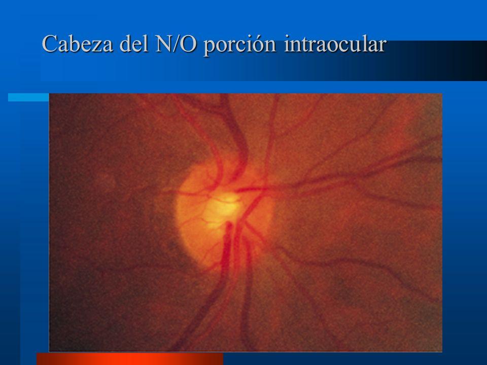 Porciones del nervio óptico