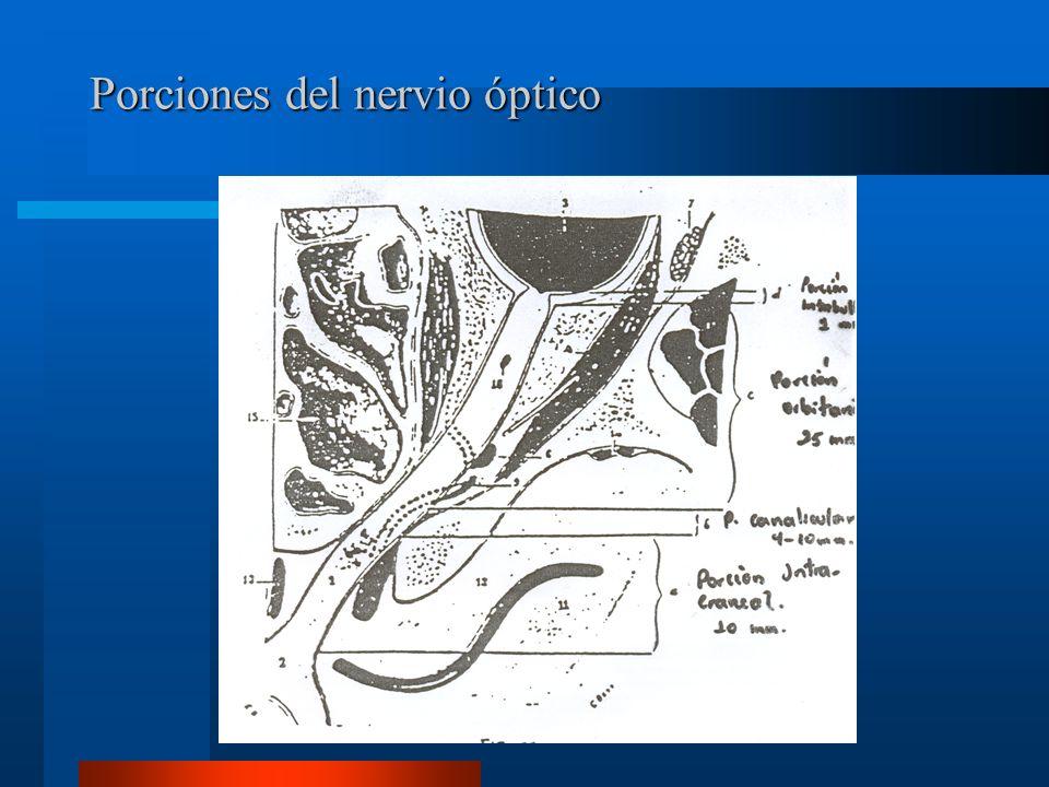 Características clínicas de una lesión del nervio óptico No percibe luz RFM directo ausente.