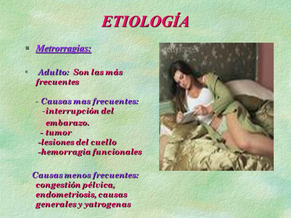 ETIOLOGÍA §Metrorragias: Adulto:Son las más frecuentes Causas mas frecuentes: interrupción del § Adulto: Son las más frecuentes - Causas mas frecuente