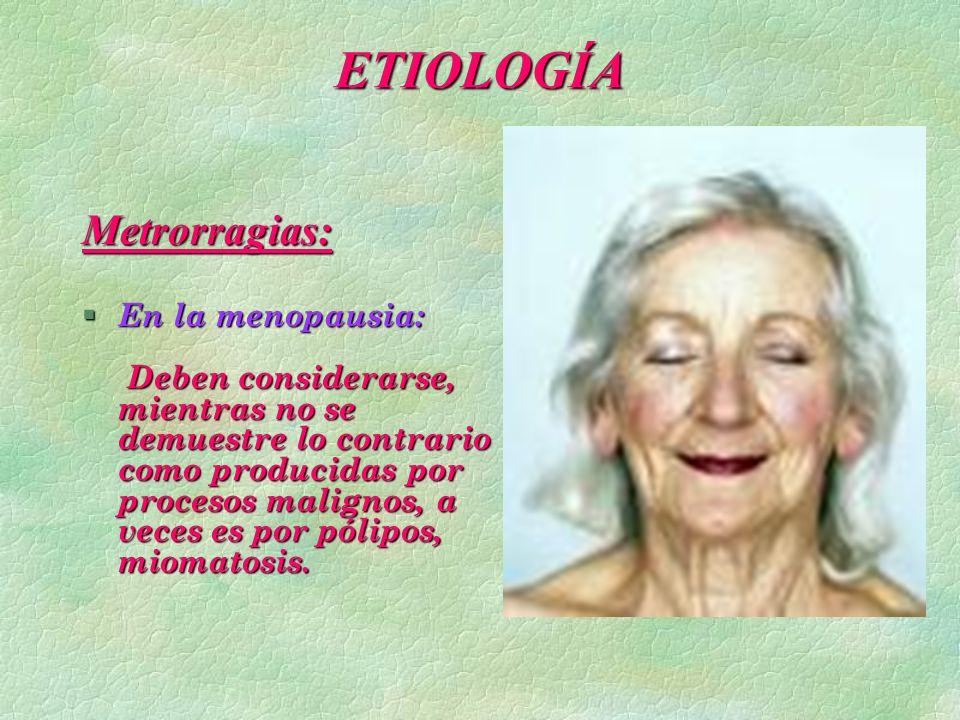 ETIOLOGÍA Metrorragias: § En la menopausia: Deben considerarse, mientras no se demuestre lo contrario como producidas por procesos malignos, a veces e