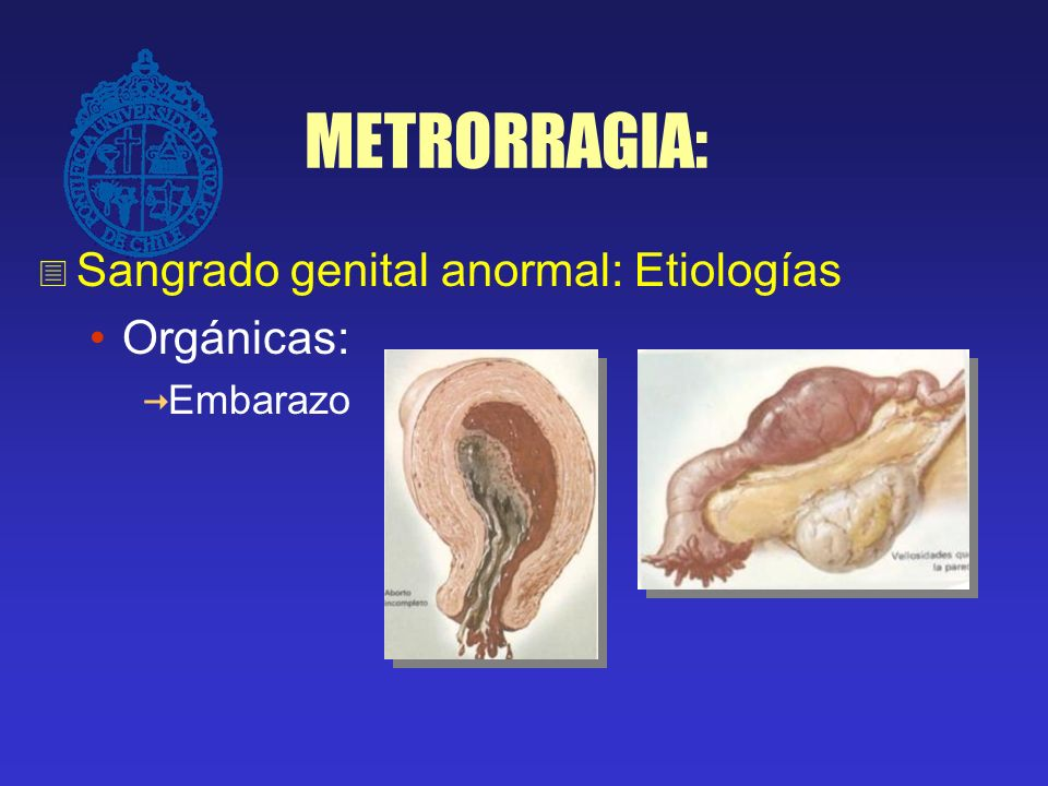METRORRAGIA: Sangrado genital anormal: Etiologías Orgánicas: Embarazo