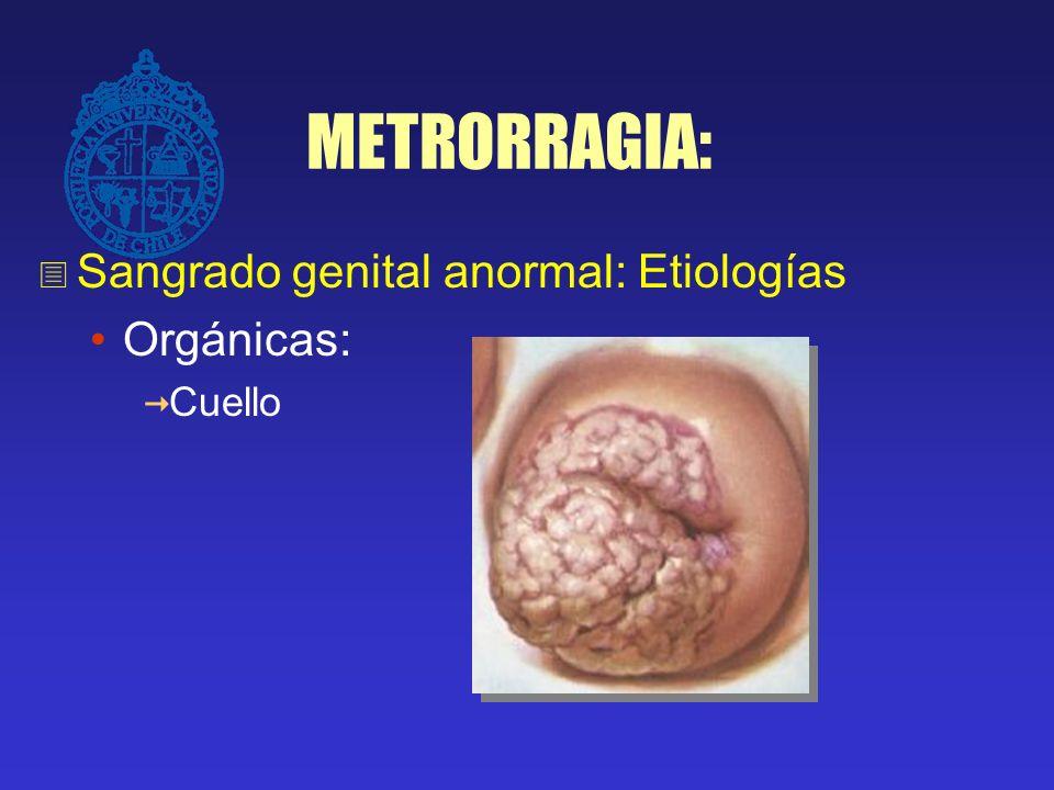 METRORRAGIA: Sangrado genital anormal: Etiologías Orgánicas: Embarazo Cuello Endometrio Cuerpo uterino Síndromes hemorragíparos Disfuncionales
