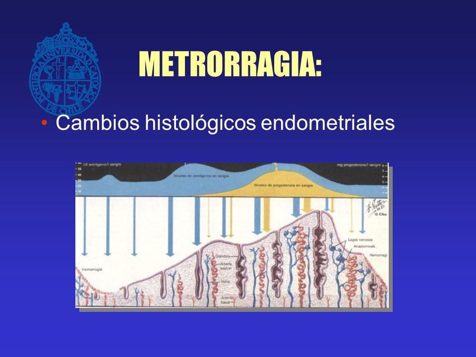 METRORRAGIA: SANGRADO MENSTRUAL NORMAL Flujo cíclico regular Períodos > de 21 días y < de 35 días Duración del flujo < ó = a 7 días Cantidad normal entre 30 y 80 ml.