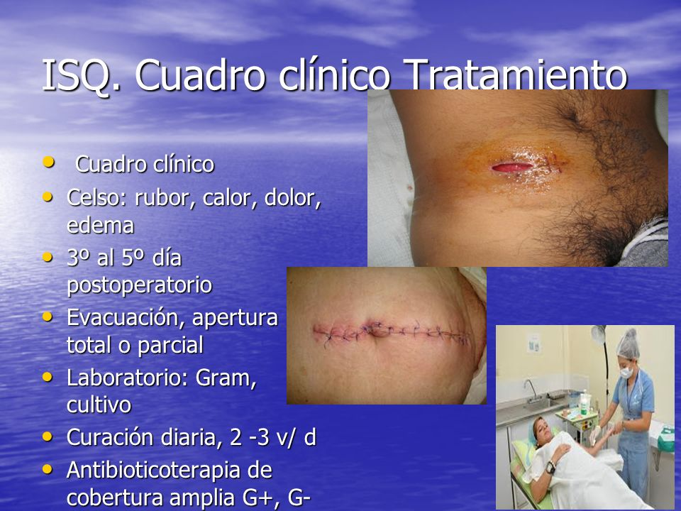 ISQ. Cuadro clínico Tratamiento Cuadro clínico Cuadro clínico Celso: rubor, calor, dolor, edema Celso: rubor, calor, dolor, edema 3º al 5º día postope