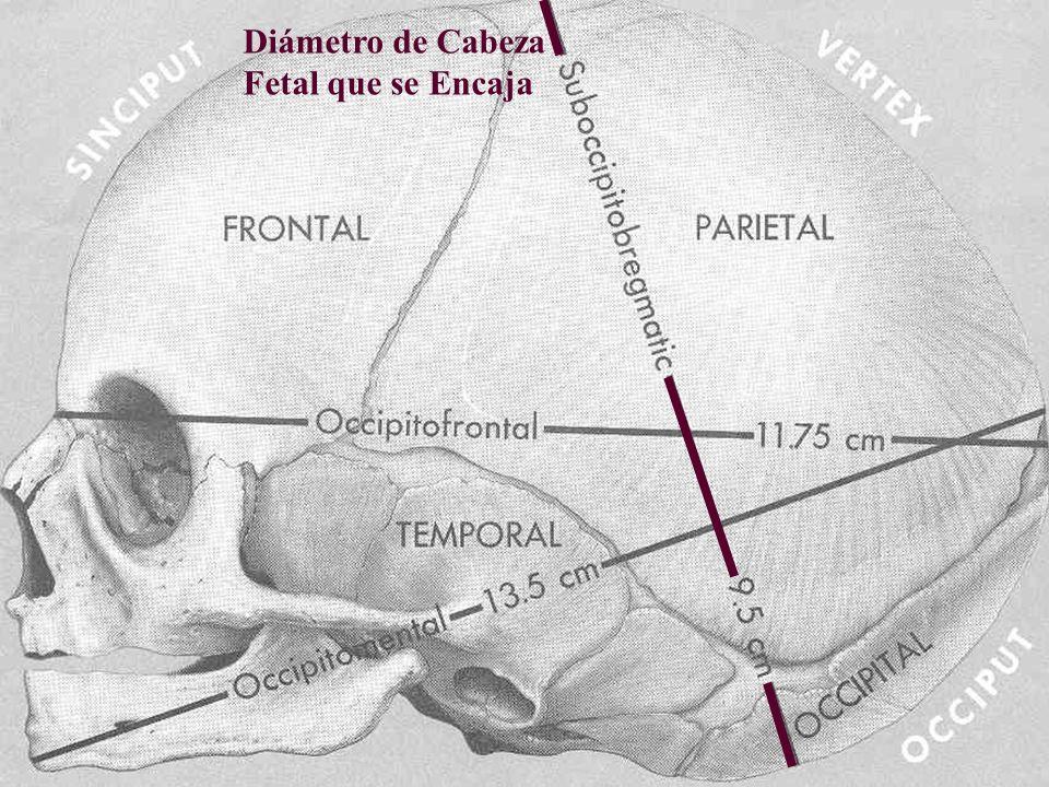 12 cms 9.5 10.5 Diámetro de Cabeza Fetal que se Encaja