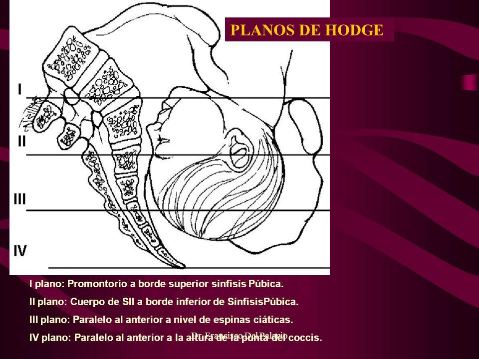 Dr. Francisco Del Palacio I plano: Promontorio a borde superior sínfisis Púbica. II plano: Cuerpo de SII a borde inferior de SínfisisPúbica. III plano
