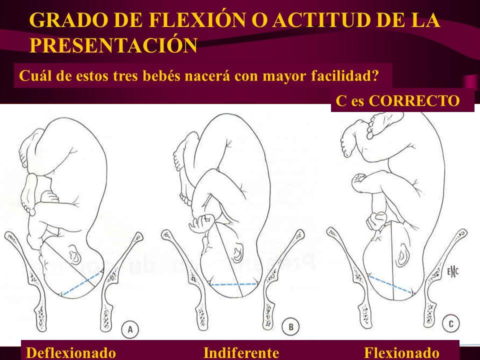 Dr. Francisco Del Palacio Cuál de estos tres bebés nacerá con mayor facilidad? Deflexionado Indiferente Flexionado C es CORRECTO GRADO DE FLEXIÓN O AC