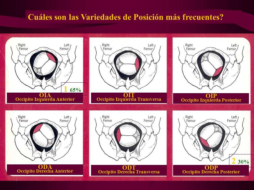 Dr. Francisco Del Palacio OIA Occipito Izquierda Anterior OIT Occipito Izquierda Transversa OIP Occipito Izquierda Posterior ODT Occipito Derecha Tran