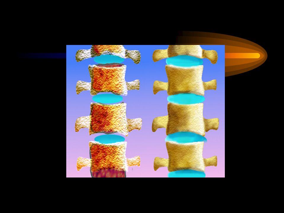 MANIFESTACIONES CLINICAS Osteoporosis: El riesgo de fractura está relacionado directamente con la edad, llegando a ser de 35% para el compromiso de ca
