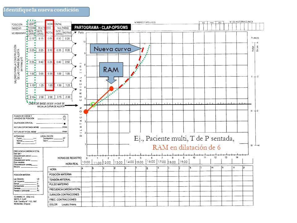 10:00 11:00 12:00 14:00 15:00 16:00 17:00 18:00 19:00 13:00 RAM Nueva curva Ej., Paciente multi, T de P sentada, RAM en dilatación de 6 Identifique la