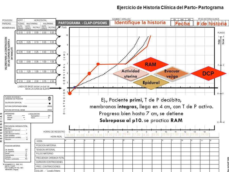 Ejercicio de Historia Clínica del Parto- Partograma 10:0011:00 12:00 14:00 15:00 16:00 17:00 18:00 19:00 13:00 Ej., Paciente primi, T de P decúbito, m