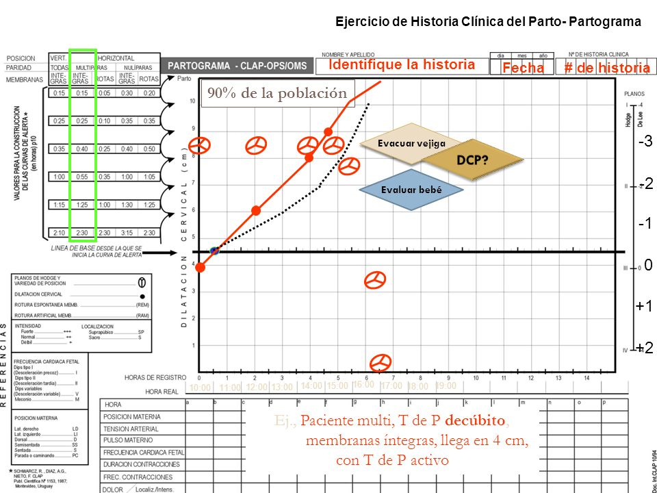Ejercicio de Historia Clínica del Parto- Partograma 10:0011:00 12:00 14:00 15:00 16:00 17:00 18:00 19:00 13:00 90% de la población Ej., Paciente multi
