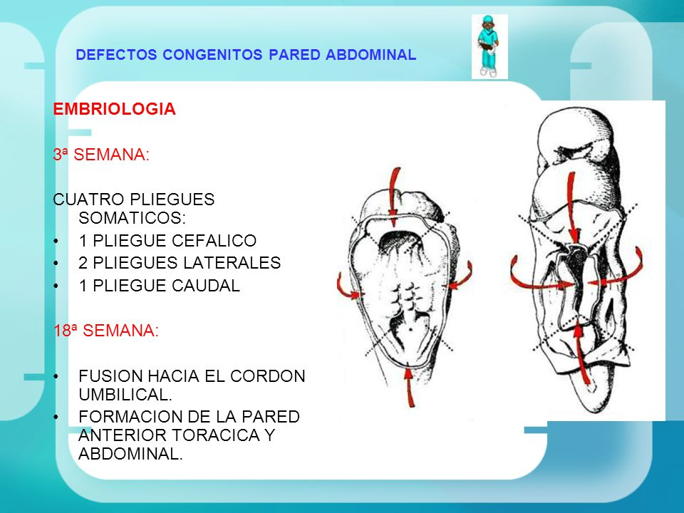 DEFECTOS CONGENITOS PARED ABDOMINAL FISIOPATOLOGIA FALLA EN LA MIGRACION Y FUSION: PLIEGUE CEFALICO: CELOSOMIA SUPERIOR SINDROME DE CANTRELL PLIEGUE CAUDAL: CELOSOMIA INFERIOR SINDROME LINEA MEDIA INFERIOR PLIEGUES LATERALES: CELOSOMIA MEDIA ONFALOCELE
