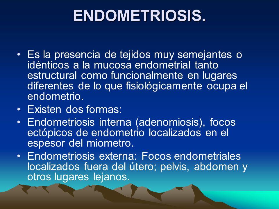 ENDOMETRIOSIS. Es la presencia de tejidos muy semejantes o idénticos a la mucosa endometrial tanto estructural como funcionalmente en lugares diferent