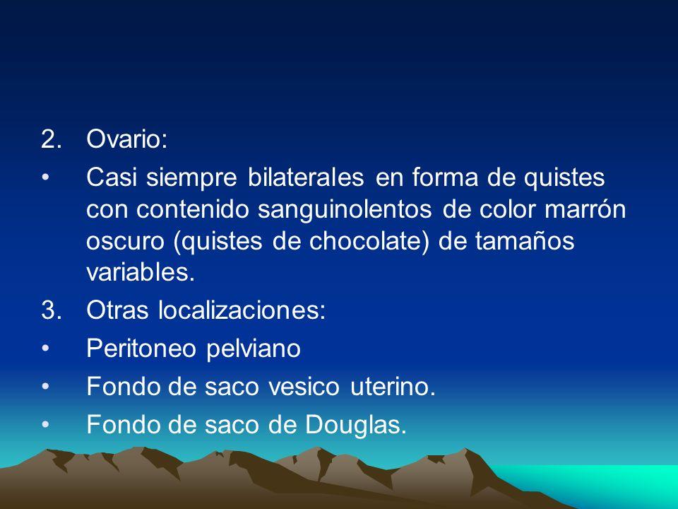 2.Ovario: Casi siempre bilaterales en forma de quistes con contenido sanguinolentos de color marrón oscuro (quistes de chocolate) de tamaños variables