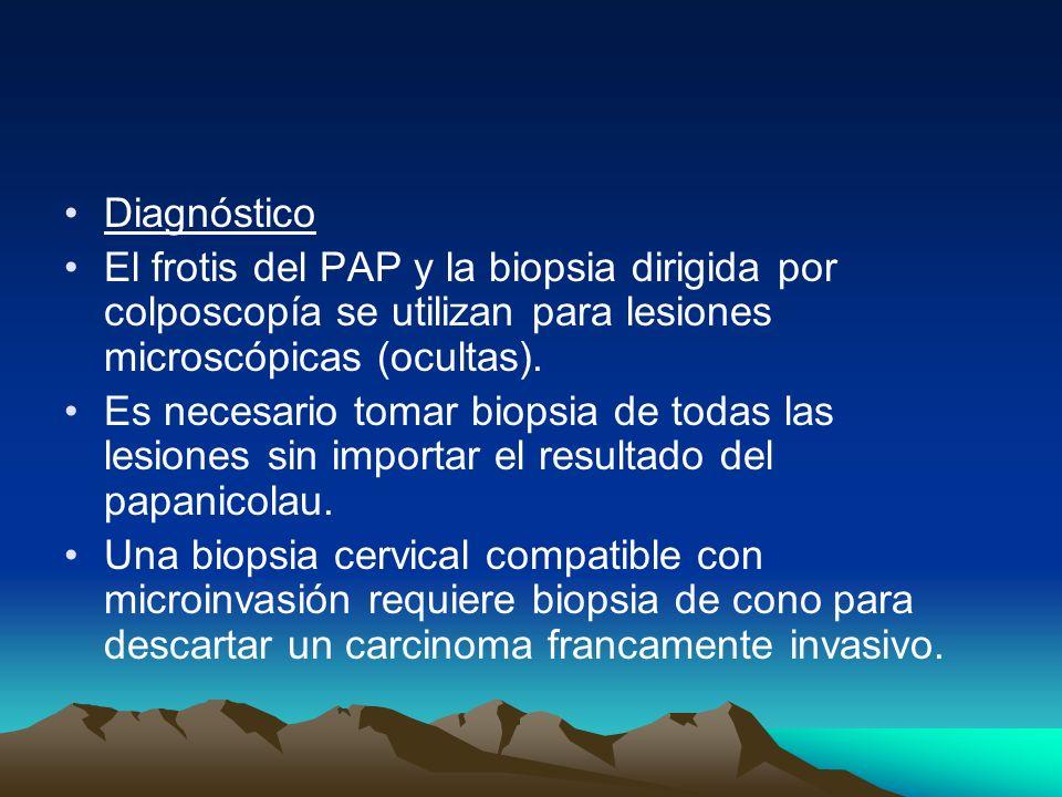 Diagnóstico El frotis del PAP y la biopsia dirigida por colposcopía se utilizan para lesiones microscópicas (ocultas). Es necesario tomar biopsia de t