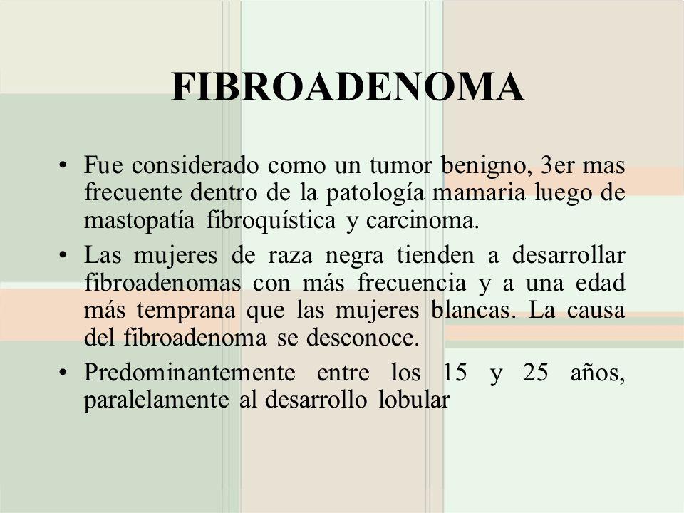 FIBROADENOMA Fue considerado como un tumor benigno, 3er mas frecuente dentro de la patología mamaria luego de mastopatía fibroquística y carcinoma. La
