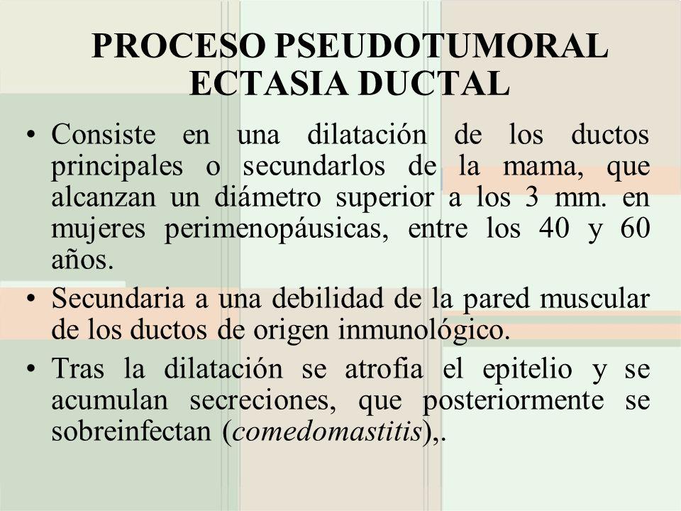 PROCESO PSEUDOTUMORAL ECTASIA DUCTAL Consiste en una dilatación de los ductos principales o secundarlos de la mama, que alcanzan un diámetro superior