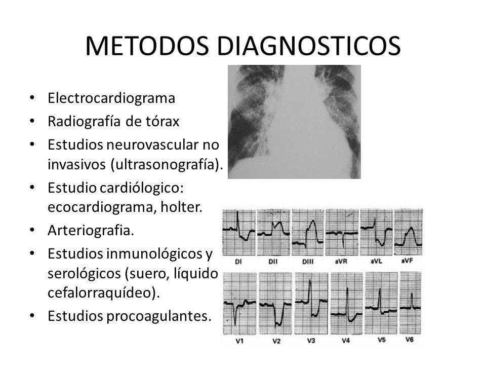 METODOS DIAGNOSTICOS Electrocardiograma Radiografía de tórax Estudios neurovascular no invasivos (ultrasonografía). Estudio cardiólogico: ecocardiogra