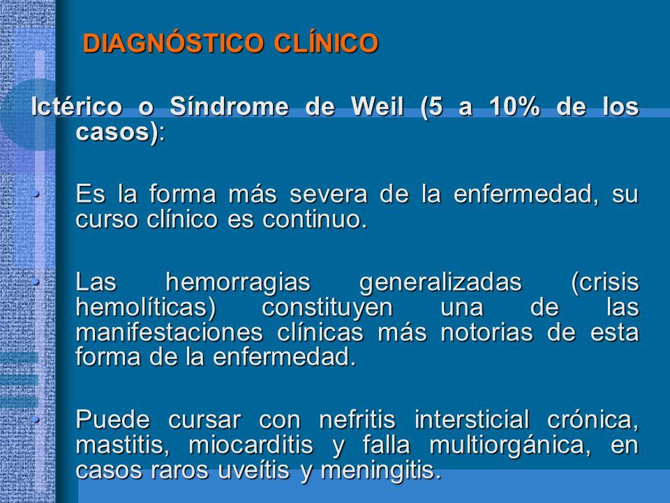 DIAGNÓSTICO CLÍNICO DIAGNÓSTICO CLÍNICO Ictérico o Síndrome de Weil (5 a 10% de los casos): Es la forma más severa de la enfermedad, su curso clínico