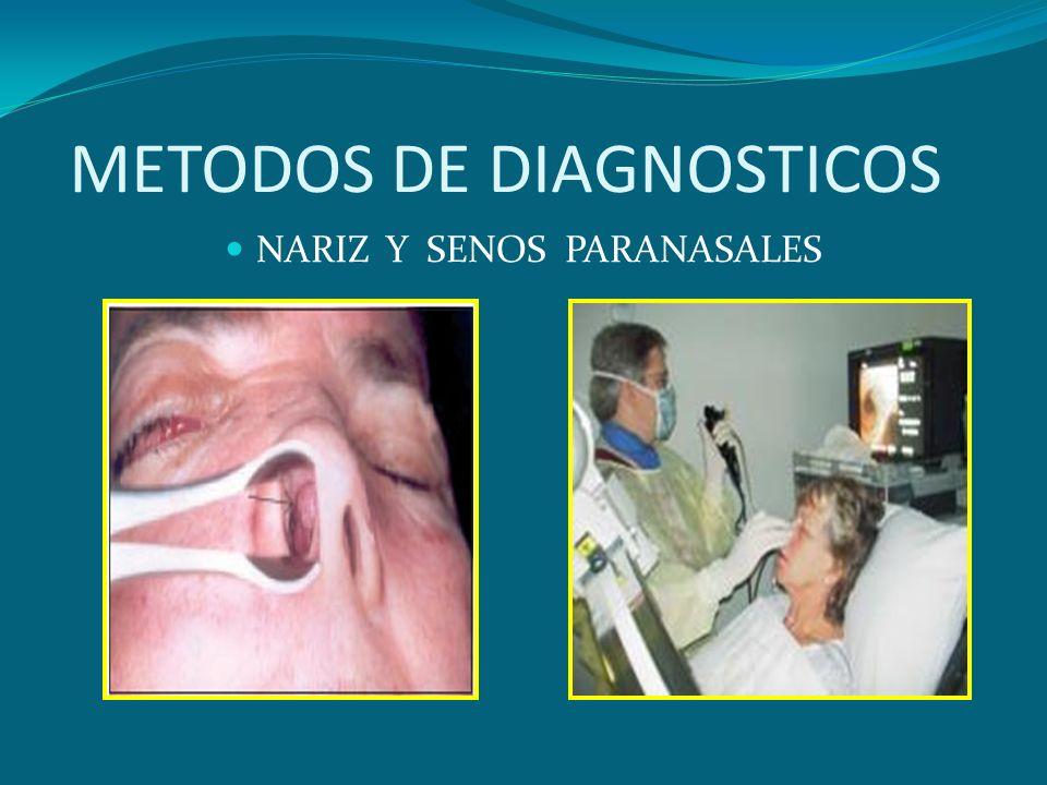 METODOS DE DIAGNOSTICOS NARIZ Y SENOS PARANASALES