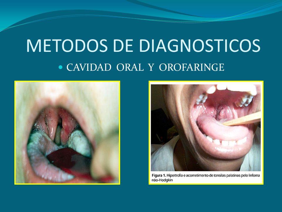 METODOS DE DIAGNOSTICOS CAVIDAD ORAL Y OROFARINGE