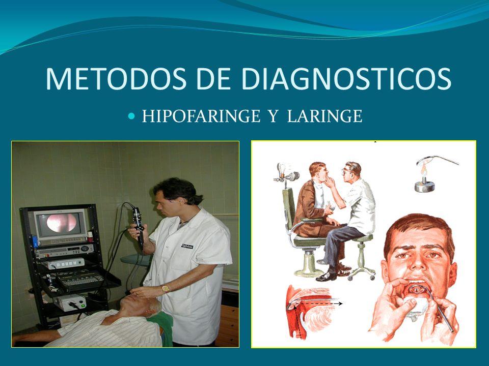 METODOS DE DIAGNOSTICOS HIPOFARINGE Y LARINGE