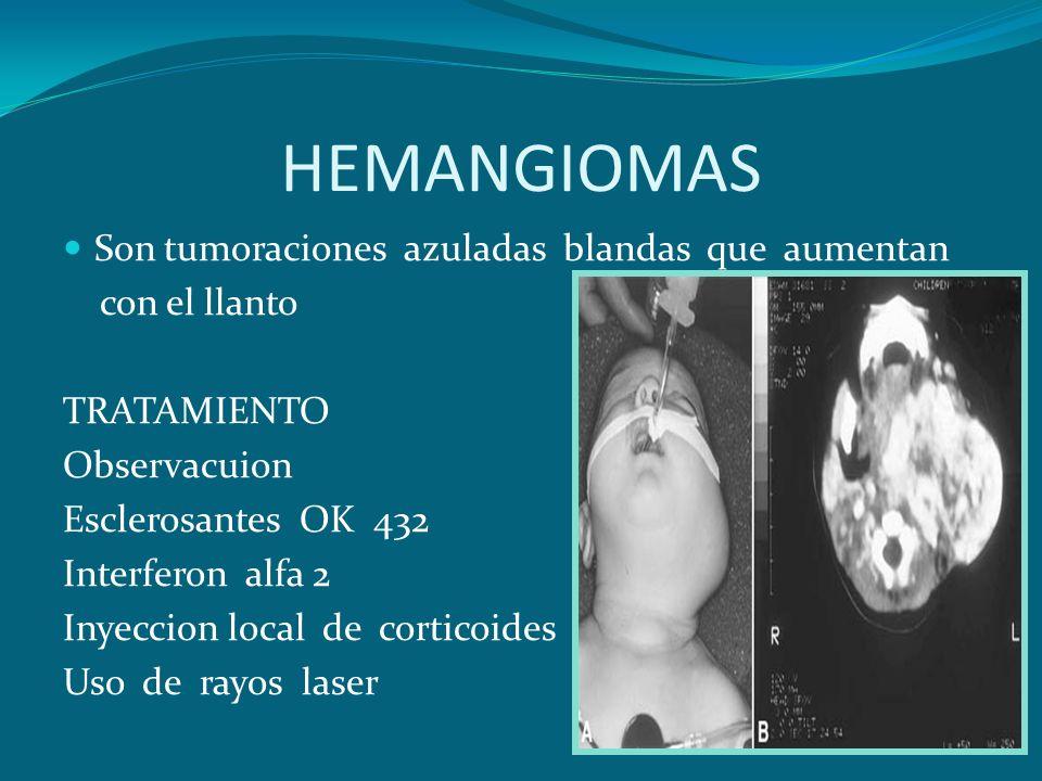 HEMANGIOMAS Son tumoraciones azuladas blandas que aumentan con el llanto TRATAMIENTO Observacuion Esclerosantes OK 432 Interferon alfa 2 Inyeccion loc
