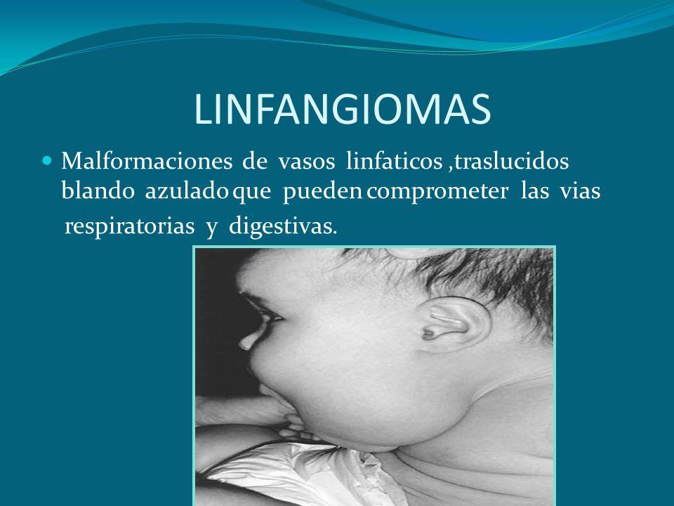 LINFANGIOMAS Malformaciones de vasos linfaticos,traslucidos blando azulado que pueden comprometer las vias respiratorias y digestivas.