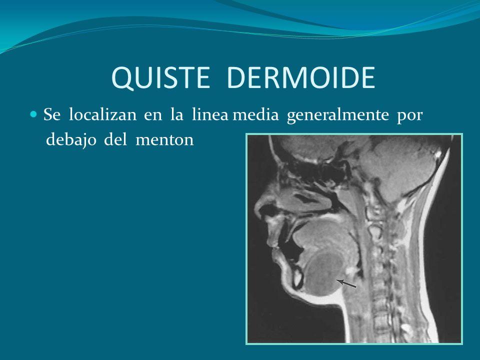 QUISTE DERMOIDE Se localizan en la linea media generalmente por debajo del menton