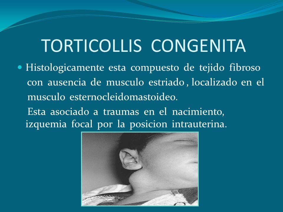 TORTICOLLIS CONGENITA Histologicamente esta compuesto de tejido fibroso con ausencia de musculo estriado, localizado en el musculo esternocleidomastoi