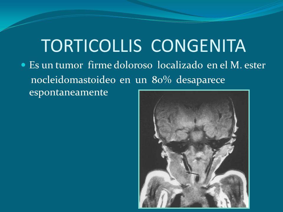 TORTICOLLIS CONGENITA Es un tumor firme doloroso localizado en el M. ester nocleidomastoideo en un 80% desaparece espontaneamente