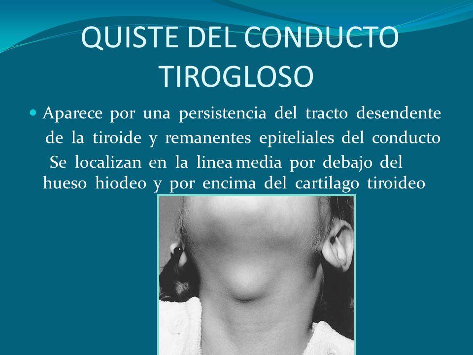 QUISTE DEL CONDUCTO TIROGLOSO Aparece por una persistencia del tracto desendente de la tiroide y remanentes epiteliales del conducto Se localizan en l